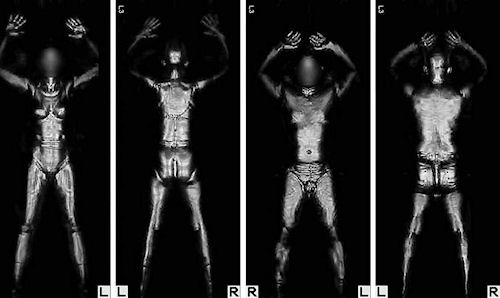 Boston logan blazes the full body scanner trail airport tsas original layout for ait equipment at boston logan reduced its number of x ray machines but the airport worked with tsa to avoid eliminating any x ray solutioingenieria Choice Image